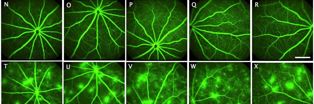 Fighting Diabetic Blindness: MU Researchers Develop New Target to Study Potential Treatments