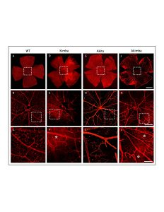 Loss of retinal capillary density and vessel leakage in Akimba mice. Isolectin-GS IB4 staining on retinal flat mount showed normal vascular bed and uniform capillary distribution in WT (A–C) mouse, which was reduced markedly in Kimba - D–F, Akita - G–I - and significantly higher in Akimba - J–L - mice. Disruption of the capillary network was noted especially around the optic disk of Akimba – K - retina. Credit: Shyam Chaurasia.